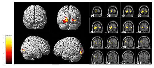 高解像度MRI画像(Voxel-based morphometry)による、小児期に性的虐待を受けた若年成人女性群(23名)と健常対照女性群(14名)との脳皮質容積の比較検討