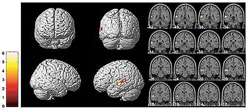 高解像度MRI画像(Voxel-based morphometry)による、小児期に暴言虐待を受けた若年成人群(21名)と健常対照者群(19名)との脳皮質容積の比較検討