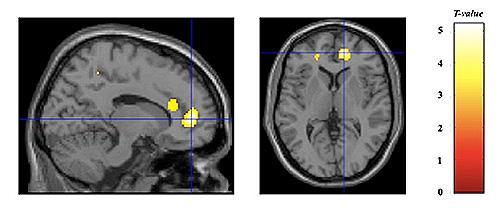 高解像度MRI画像(Voxel-based morphometry)による、小児期に厳格体罰を受けた若年成人群(23名)と健常対照群(22名)との脳皮質容積の比較検討
