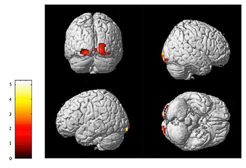 高解像度MRI画像(Voxel-based morphometry)による、小児期に両親間の家庭内暴力(DV)を目撃した若年成人群(23名)と健常対照群(22名)との脳皮質容積の比較検討