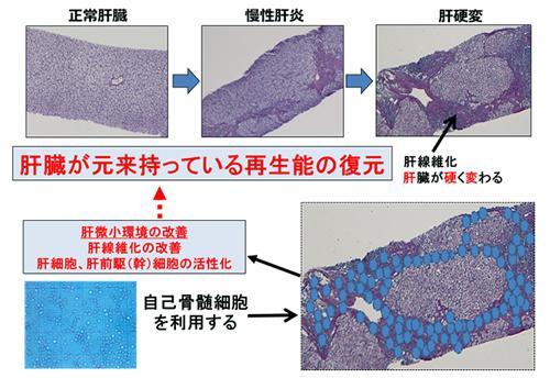 図1. 自己骨髄細胞を用いた肝臓再生療法の作用機序のイメージ