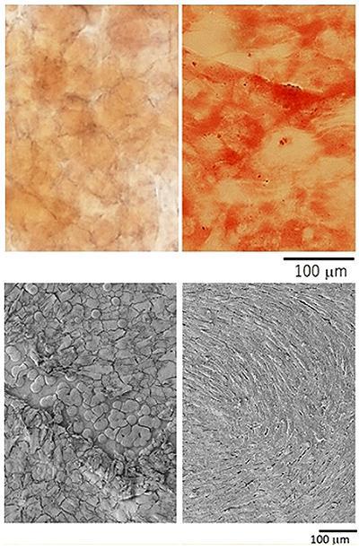 アビコアイアン上でマウスの間葉系幹細胞(左上)が骨芽細胞へと分化した様子(右上)。筋芽細胞が増殖(左下)し、さらに筋管細胞に分化した様子(右下)=東北大学提供