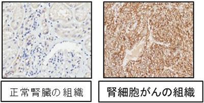 細胞 が ん 腎