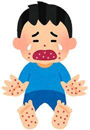 手足口病のイメージ(いらすとや提供)