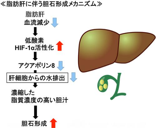 図 脂肪肝に伴う胆石形成メカニズム。赤い矢印は増加、青い矢印は減少を示す(東北大学提供)