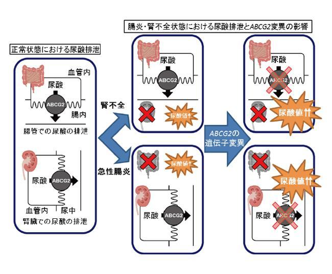 図 ABCG2による尿酸排出の病態生理学的モデル。急性腸炎などの消化器疾患の患者は腸管の炎症で腸からの尿酸排出が妨げられるのでABCG2の遺伝子変異による腎臓のABCG2機能低下が尿酸値に大きく影響する.(防衛医科大学校の研究グループ提供)