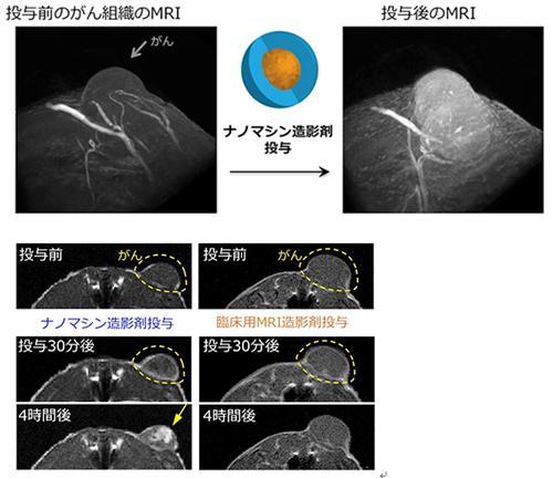 写真と図 ナノマシン造影剤は、現在のMRI造影剤よりも高いコントラストでがん組織を検出、可視化できる(東京工業大学、量子科学技術研究開発機構、ナノ医療イノベーションセンターによる研究グループ提供)