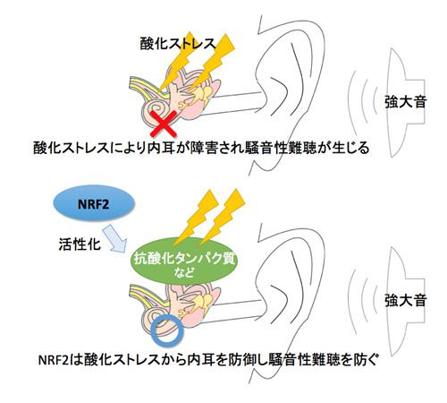 NRF2の活性化がもたらす騒音性難聴の防御効果。東北大学と防衛医大の研究グループ提供