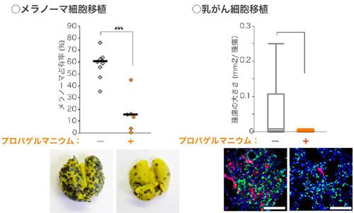 CCL2阻害剤のプロパゲルマニウムはマウスでがん転移を抑制する