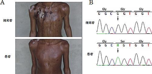 健常者と先天性無汗症患者の発汗の様子と2型IP3受容体DNAの変異の比較