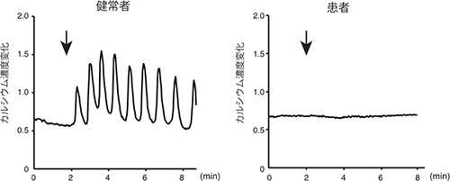 患者で見つかった点変異をもつ2型IP3受容体の活性