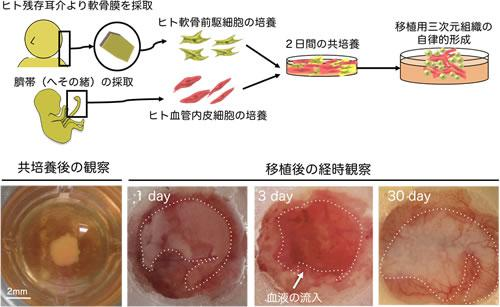 血管内皮細胞との共培養で移植用軟骨を作るヒト軟骨培養法