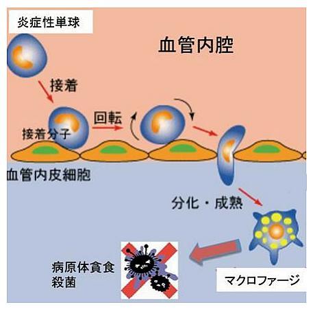 炎症性単球の感染局所への集積のイメージ
