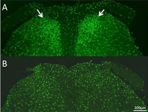 慢性疲労症候群のモデルラットの脊髄後角に見られるミクログリアの活性化と集積(A. 矢印の緑の細胞群)、ミクログリアの集積が見られない正常なラットの脊髄(B)