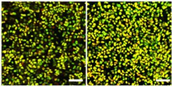 ヒトiPS細胞から作製したドーパミン神経前駆細胞(黄色)の免疫染色