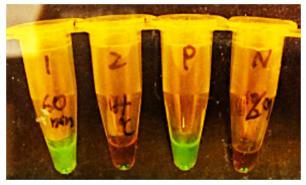 小型蛍光検出器による陽性・陰性判定