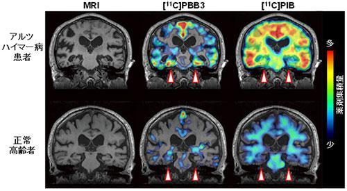 同じ人での、[11C]PBB3(タウ病変を検出する新規薬剤)と[11C]PIB(アミロイドベータ病変を検出する薬剤)の脳内で集積比較