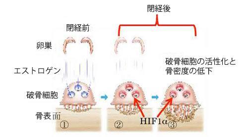 閉経後の破骨細胞の活性化と、骨粗鬆症の発症メカニズム