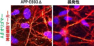 神経細胞内に蓄積したAβの様子