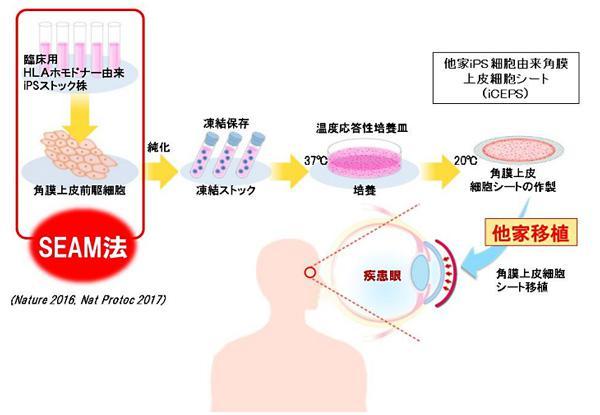 大阪大学のグループが実施したiPS角膜移植の概念図(大阪大学提供)