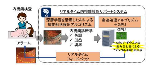 図 AIを活用した大腸がん徹底チェックシステムの概念図(提供・国立がん研究センター、NECなど研究グループ)