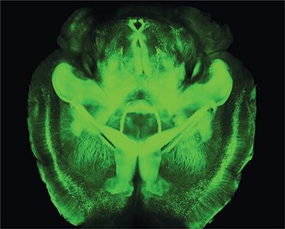 透明化した脳の画像