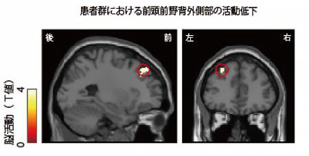 画像 ギャンブル依存症患者の脳の活動状態〔提供・京都大学/京都大学研究グループ〕