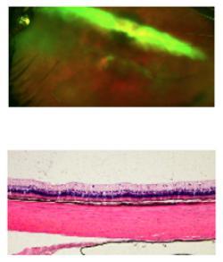 写真 ウサギの実験で人工硝子体を使った治療の1年後の眼底写真(上)と網膜組織(下)。いずれもほぼ正常な状態が保たれていた(東京大学・筑波大学の研究グループ提供)