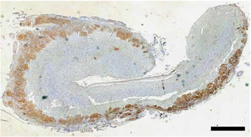 ヒゲクジラ類のホッキョククジラの嗅球の冠状切片、スケールバーの長さは1ミリ。画面上が背側、下が腹側、右が外側、左が内側