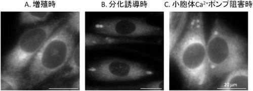 マウス筋芽細胞での小胞体膜構造の変化。マウス筋芽細胞の小胞体を小胞体特異的蛍光染色試薬で可視化した。増殖時(A)。筋分化誘導時(B)、小胞体カルシウムポンプ阻害時(C)には、増殖時には見られない小胞体の球状構造が出現する。