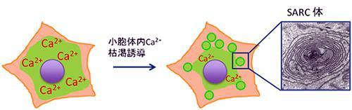 小胞体内カルシウム枯渇誘導とSARC体形成