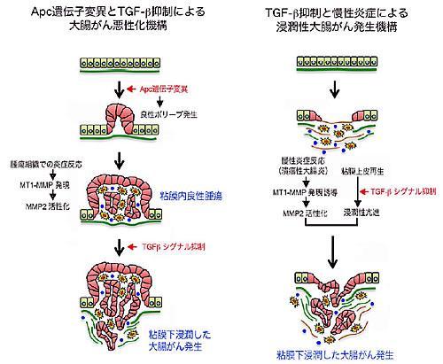 今回の研究でわかった大腸がん悪性化の仕組み。左はAPC遺伝子変異とTGF-β抑制による、右はTGF-β抑制と慢性炎症による浸潤性大腸がん発生。