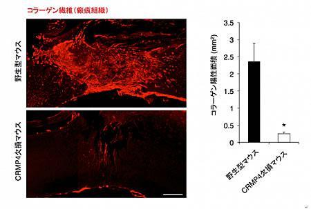 損傷1週間、CRMP4遺伝子欠損マウスの脊髄では野生型マウスの脊髄に比べ、瘢痕組織が縮小し、神経再生が起きやすい環境になっていた