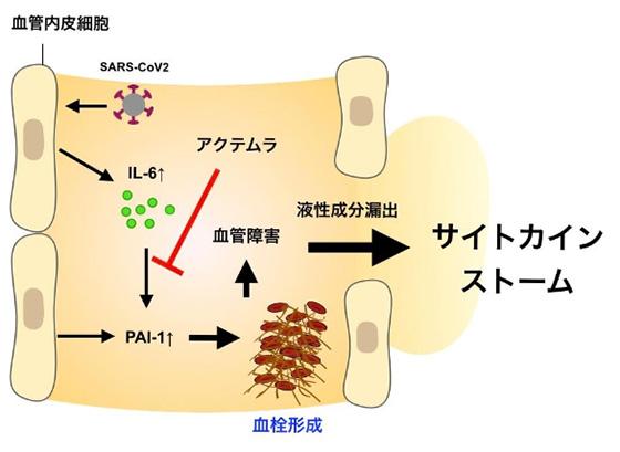 新型コロナウイルスの感染により、血中のIL-6がPAI-1を介して血栓形成を促進し、サイトカインストームの引き金になることを示す概念図。抗体医薬品「アクテムラ」がIL-6の働きをブロックする(大阪大学提供)
