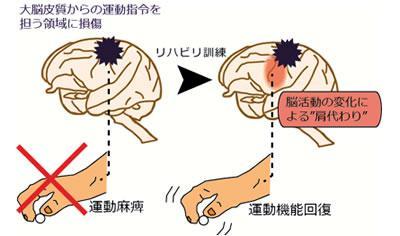 運動指令を担う領域の損傷後、把握動作を用いたリハビリで手の運動機能が回復した。このとき残存する脳領域で損傷した領域の機能を肩代わりする脳活動の変化が生じていた。