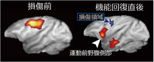 脳損傷前(左)と損傷から1、2カ月後の機能回復直後(右)のPET画像。回復直後には損傷前と比べて運動前野腹側部の活動が高まった。