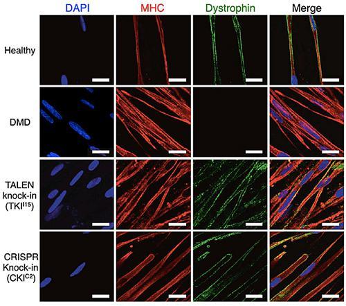 ジストロフィン遺伝子を修復するための3つの手法のうち、Exon 44 knock-inが最も有効だった