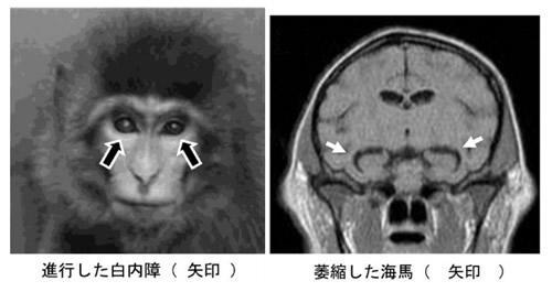 早老症のニホンザル
