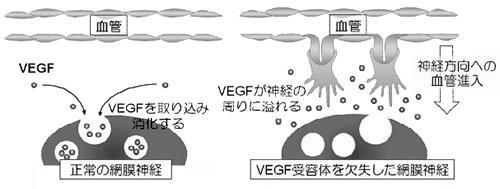 網膜で血管が神経によって排除される仕組み。正常な網膜神経は、血管の進入を誘導するVEGFを取り込み、消化しているため、網膜に血管は進入しない(左)が、遺伝子改変でVEGF受容体を欠失して、VEGFを取り込めない網膜神経の周りにはVEGFが多量に存在するため、網膜内部に向けて血管が進入する(右)。