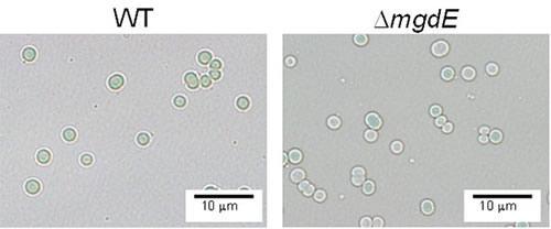 シアノバクテリアの顕微鏡写真。左が野生型。右がmgdE遺伝子破壊株で、葉緑素の含量が少なく白くなった細胞も混在する。