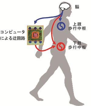 コンピューターによる脊髄迂回路の概念図