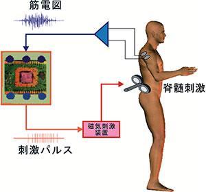 コンピューターによる脊髄迂回路の方式