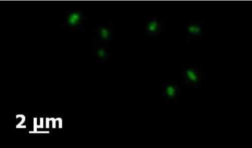 顕微鏡で捉えた翡翠水庫の脱窒メタン酸化細菌。CARD-FISH と呼ばれる染色法で脱窒メタン酸化細菌(緑色の細胞)を特異的に可視化した。