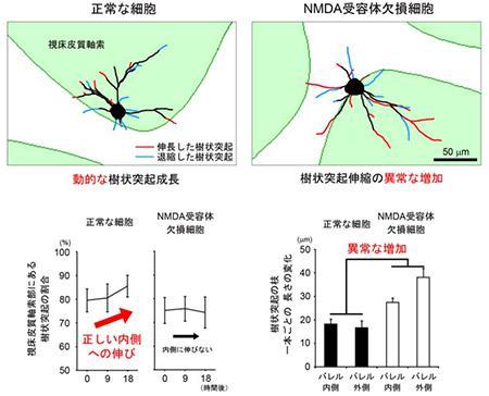 神経細胞の樹状突起の18時間の伸縮の変化