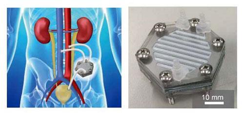 画像4 人工腎臓(右)とインプラントのイメージ図
