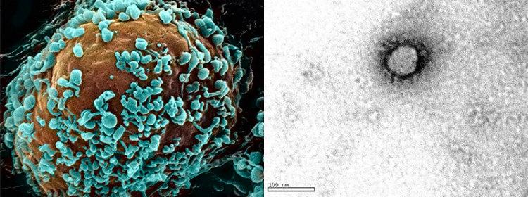 新型コロナウイルス(SARS-CoV-2)の電子顕微鏡写真 細胞表面から出芽する新型コロナウイルス粒子を見やすくするためにコンピューター上で青く着色(左、走査型電顕で撮影)。ウイルス粒子を取り囲むように、名前の由来となったコロナウイルス特有の王冠状の突起がある(右、透過型電顕で撮影)。 ※画像提供:東京都健康安全研究センター