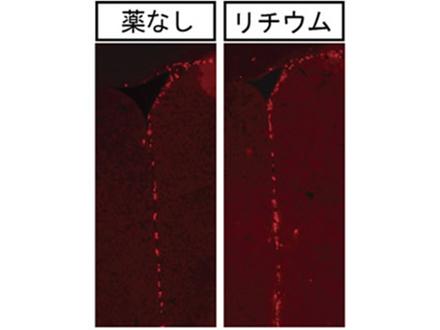 薬物が神経幹細胞を活性化マウスで確認