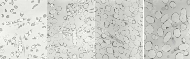 微生物が体内にPHBHを蓄積していく過程を撮影した顕微鏡写真 ※画像提供:株式会社カネカ