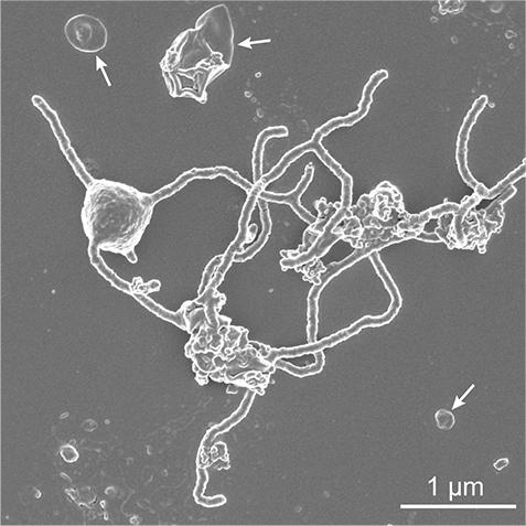 特殊な顕微鏡で捉えられたMK-D1の姿。触手に似た長い突起を周囲に向かって伸ばしているのが分かる。 ※画像提供:JAMSTEC