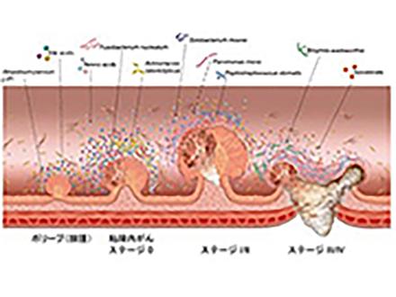 40兆個もある腸内細菌の中から大腸がん発症に関わる菌種を見つけた 早期診断の新検査法に道